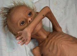 يونيسيف: أكثر من 11 مليون طفل يمني بحاجة ماسة للمساعدة