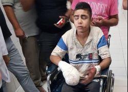 اصابة فتى بجراح خطيرة نتيجة انفجار جسم مشبوه بالخليل