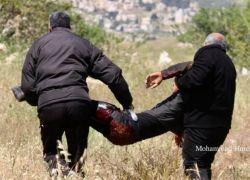اصابة فتى بجراح خطيرة في مواجهات مع الاحتلال في بلدة تقوع