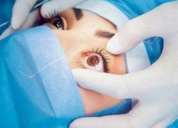 علاج 'ثوري' في طب العيون يُغني عن 'زراعة القرنية'