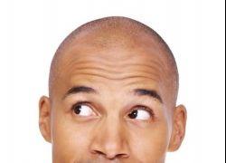 دراسة: الرجل الأصلع أكثر تأثيراً وأجدر بالثقة