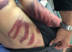 الشرطة تقبض على 7 أشخاص اختطفوا محامياً واعتدوا عليه