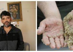 كيف اصبح رجل الشجرة الفلسطيني بعد 10 سنوات من مرضه ؟