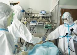 فريق علمي يكشف سبب فقدان الشم والذوق لدى مصابي كوورونا