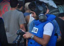 بعد 70 يوما من اصابته ..اكتشاف رصاصة في جسد صحفي من غزة