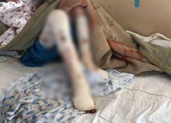 امرأة تعذب زوجها حتى الموت بعد تفكيره في الزواج بأخرى