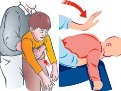 ماذا تفعل عند ابتلاع طفلك جسما غريبا؟
