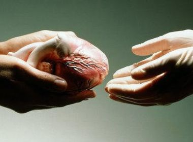 جهود لوضع مسودة قانون تتعلق بزراعة الاعضاء البشرية