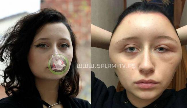 كادت تقتلها : صبغة شعر تحول وجه فتاة إلى كرة مرعبة