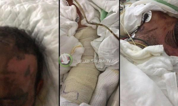 سعودية تسكب مادة حارقة على زوجها وهو نائم