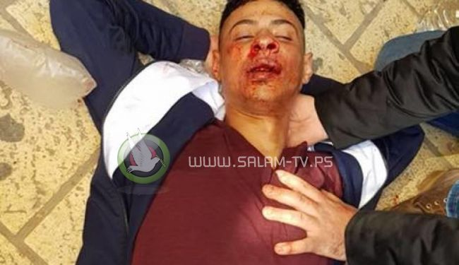 اصابة شاب فلسطيني بجراح بعد تعرضه للضرب المبرح على يد مستوطنين امام المسجد الأقصى