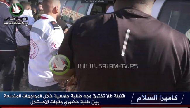 طولكرم: الاحتلال يصيب طالبة جامعية بقنبلة غاز في الوجه وآخرين بالرصاص خلال مواجهات .. فيديو