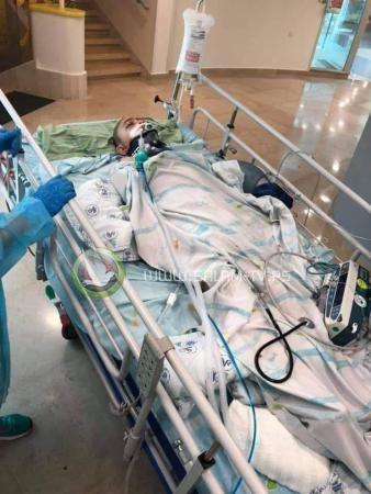 تركيب جمجمة صناعية للطفل الجريح عبدالرحمن شتيوي
