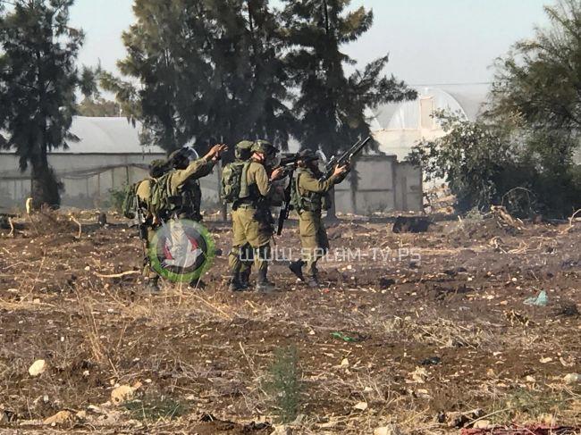بتر كف يد احد الشبان خلال مواجهات مع الاحتلال غرب طولكرم