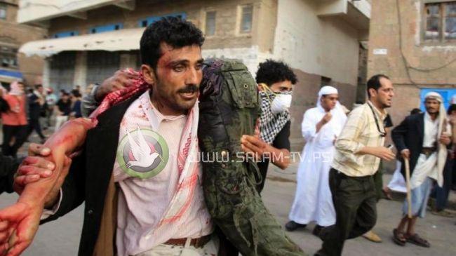 الحديدة.. اتهامات للأمم المتحدة بتجاهل انتهاكات الحوثي