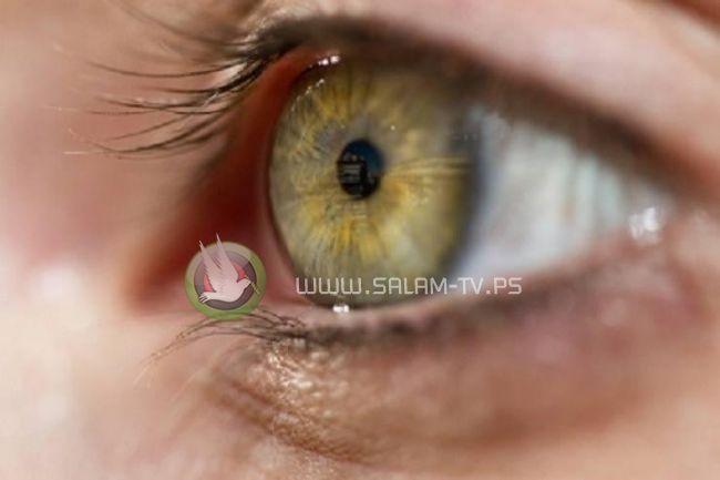 'قرنية العين' تُسبب جدلاً في مصر .. ما القصة؟