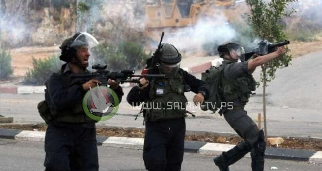 إصابات بالرصاص والاختناق في مواجهات مع الاحتلال شمال طولكرم