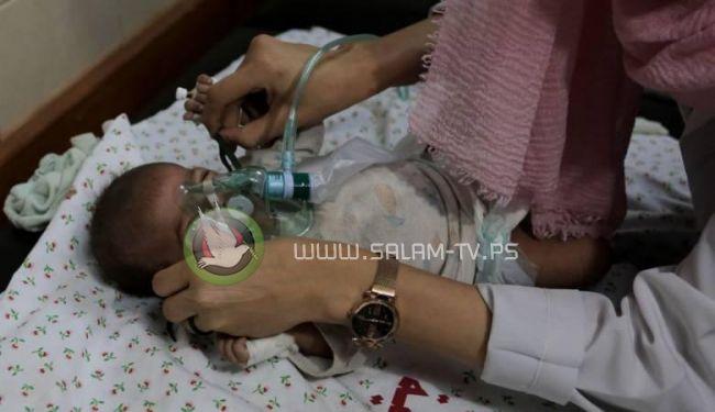 وزيرة الصحة : ثلث الشهداء في العدوان الاسرائيلي على غزة من الاطفال والنساء