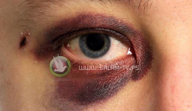"""اصابة طفل بجراح خطيرة في """"عينه """" جراء الالعاب النارية في الخليل"""